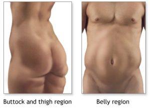 Men Women Fat Zones