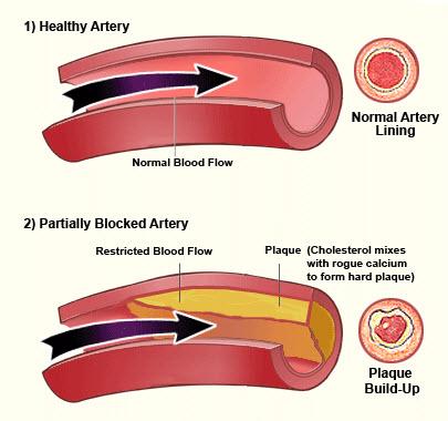 Arterial Blockage